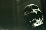 <h5>Skull</h5>